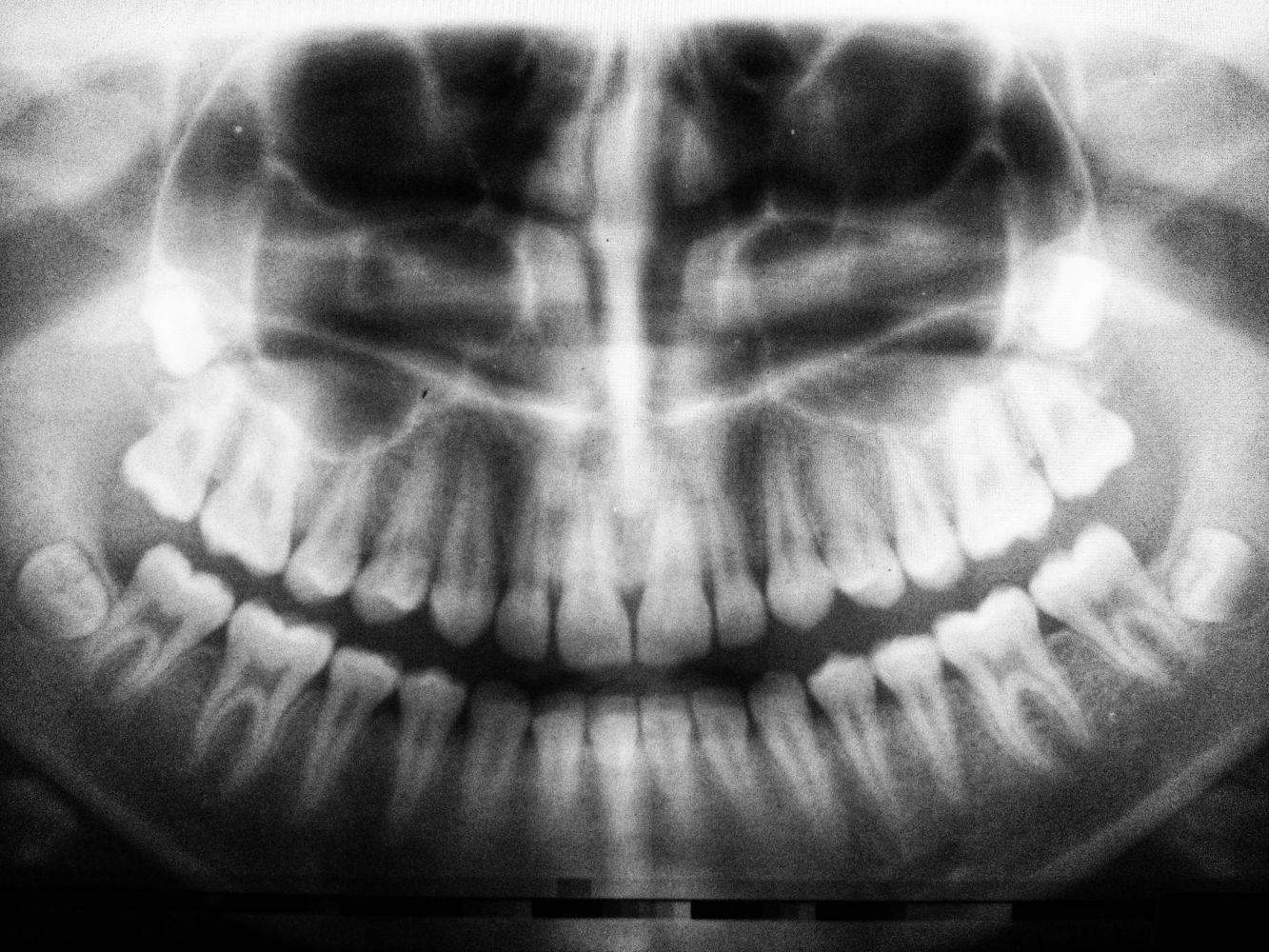 dente no nariz 3
