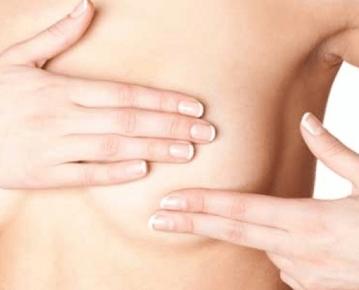 exame de sangue câncer de mama 7