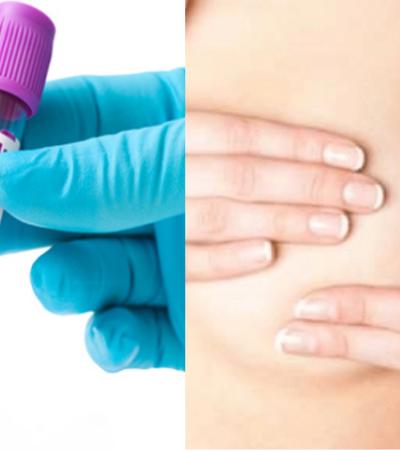 Um simples exame de sangue já pode prever câncer de mama 5 anos antes de se manifestar