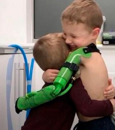 Menino de 5 anos recebe prótese e abraça irmão pela primeira vez