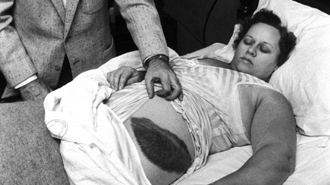 mulher atingida meteorito 1