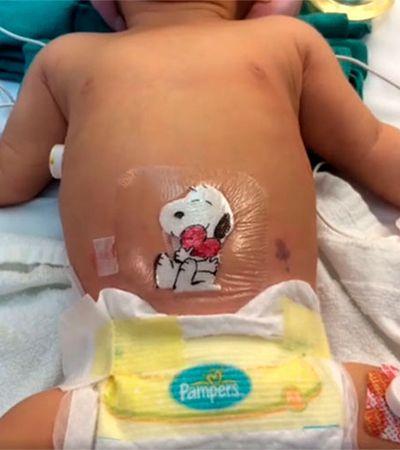 Médico faz desenhos fofinhos nos curativos sobre as cicatrizes de crianças para amenizar o pós-operatório