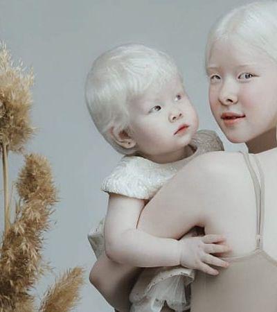Irmãs albinas com 12 anos de diferença fazem ensaio estonteante