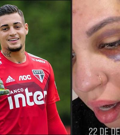 Goleiro Jean acusa imprensa e ex-mulher revela novas fotos de agressão