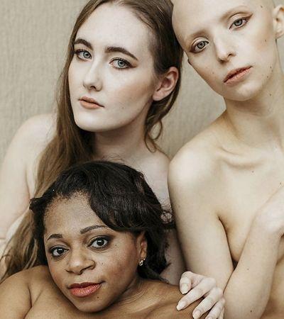 Ensaio fotográfico mostra que elas não são deficientes: são mulheres