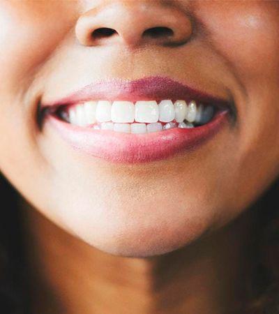 Estudo diz que dentes são capazes de contar história de nossas vidas