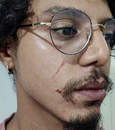 Supermercado vai pagar R$112 mil por jovem negro agredido por segurança