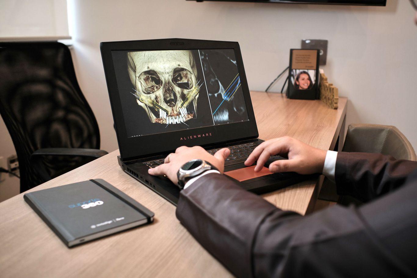 Profissional mexe no computador. Na tela é possível ver a foto de um crânio.