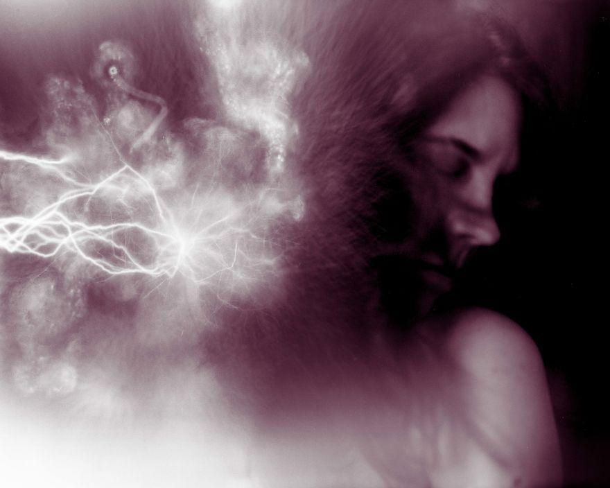 eletricidade estática ansiedade 1