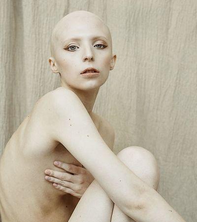 Mulheres com deficiências e condições particulares celebram a beleza da diversidade
