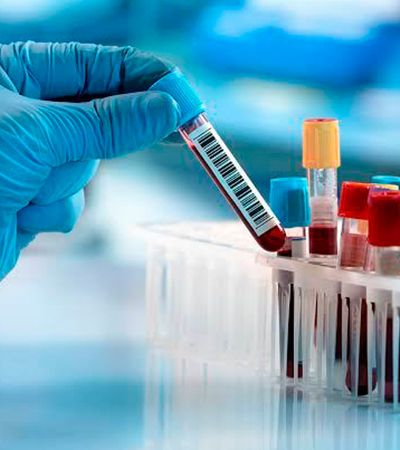 Câncer: exame é capaz de detectar variações da doença com antecedência