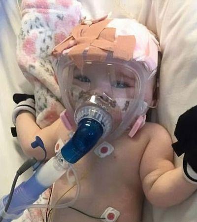 Bebê de 6 meses sobrevive a coronavírus após enfrentar doenças cardíacas e pulmonares