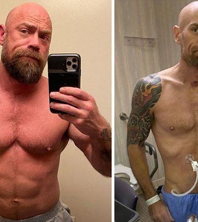 Coronavírus: homem posta fotos de antes e depois de 6 semanas no hospital e alerta sobre pandemia