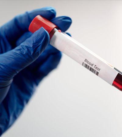 Câncer assintomático poderá ser detectado via exame de sangue, diz estudo