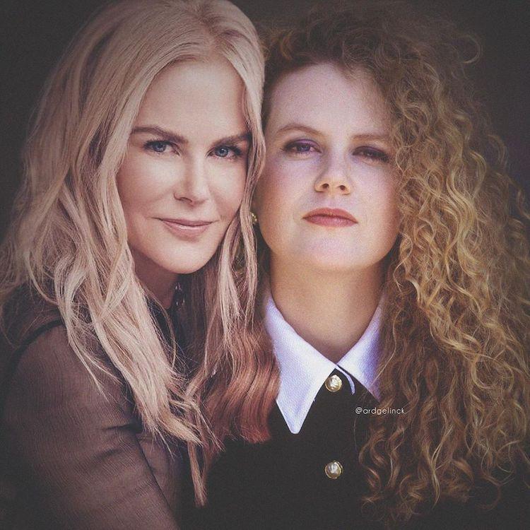 Antes e depois de Nicole Kidman