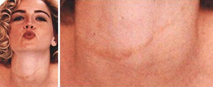 cicatrizes de celebridades 7