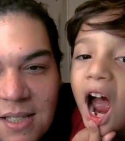 Filho interrompe aula online do pai professor para mostrar dente de leite que caiu