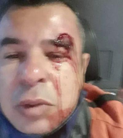 Motoristas em MG são agredidos, pasmem, por exigirem que passageiros usem máscaras