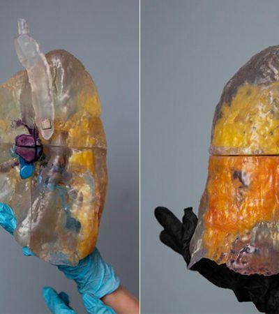 Tecnologia 3D ajuda médicos ao mostrar como ficam os pulmões atingidos pela covid-19