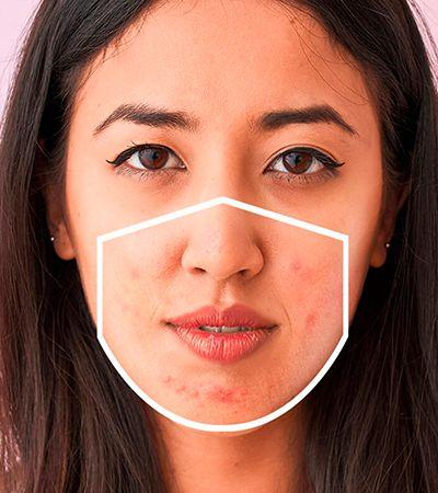 Acne causada pelo uso de máscaras? Aprenda como prevenir e tratar
