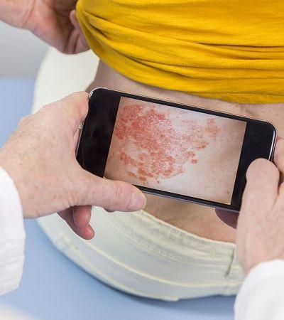 Coronavírus: pandemia aumenta incidência de problemas de pele