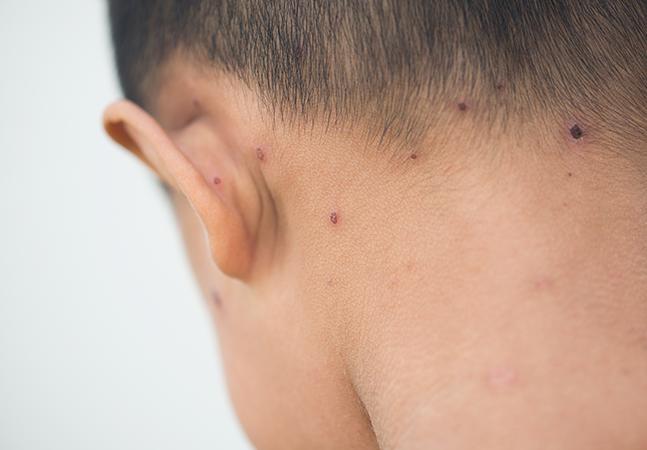 Surge segundo caso de vírus da família da varíola de origem desconhecida