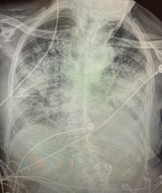 Raio-x de um pulmão afetado pela Covid-19
