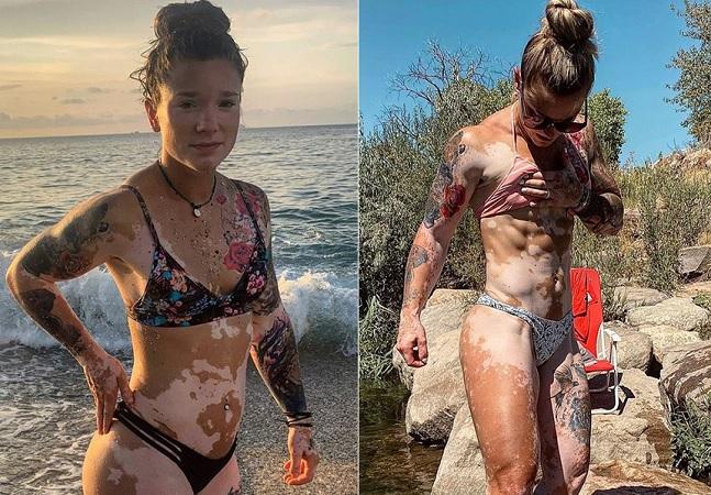 Ela registrou seu processo de aceitação do vitiligo para inspirar outras pessoas