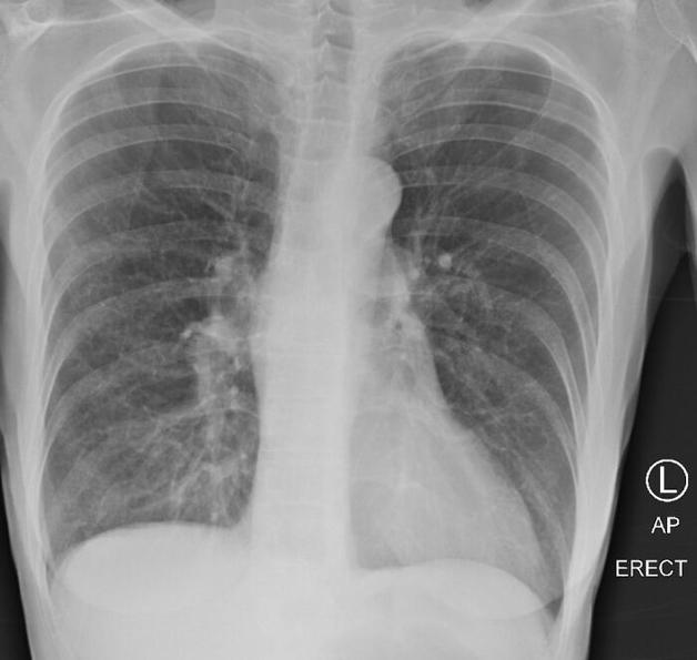 Raio-x de um pulmão afetado pelo tabagismo por décadas