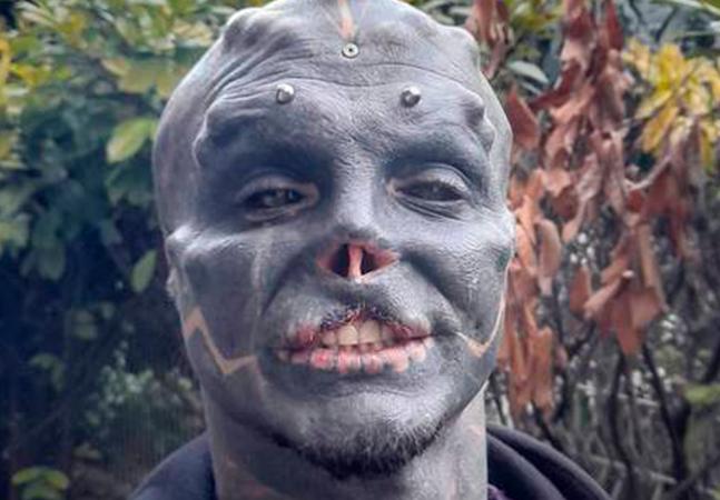 Francês retira parte do lábio para se tornar alienígena e diz querer substituir pele por metal