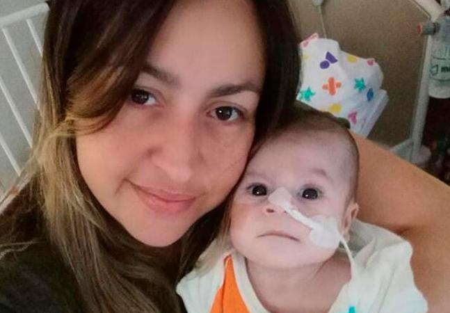 Pais criam vaquinha para cuidar de bebê que nasceu com terceiro braço e metade do coração