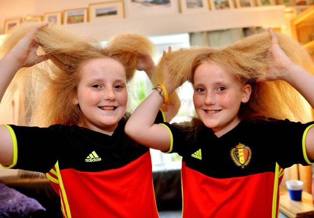 A história das gêmeas com uma síndrome que deixa o cabelo 'elétrico' e 'impenteável'
