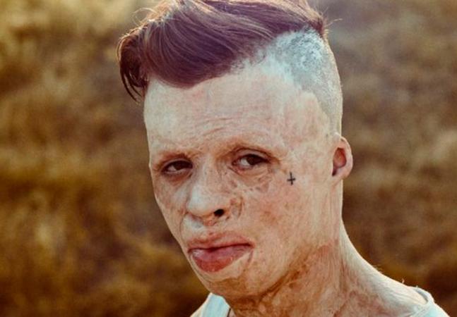 Ele teve 90% do corpo queimado e afirma que raiva o mantém vivo 'fazendo rap e música'