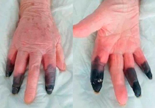 Idosa de 86 anos com reação rara à covid-19 amputa três dedos da mão