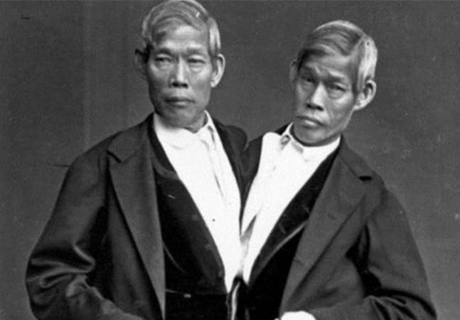 Os irmãos siameses que desafiaram costumes e ciência e tiveram 21 filhos