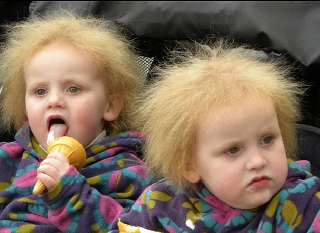 Agnetha e Anja Norendal, irmãs gêmeas com Síndrome do Cabelo Impenteável