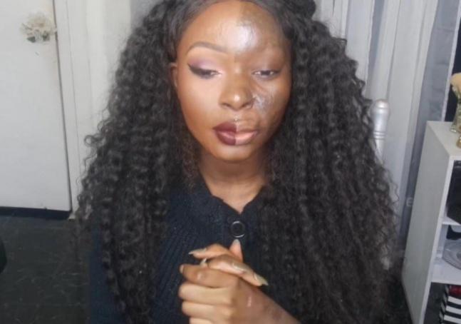 Ela teve boa parte do rosto queimado,  mas faz questão de mostrar que não  precisa de cosméticos para ser confiante