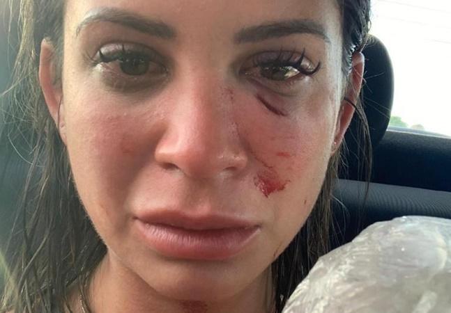 Mulher acusa empresário de agressão em resort na BA: 'Levei dois socos e bebi água piscina'