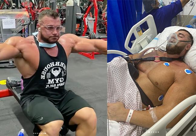 Homem dá depoimento impressionante após romper músculo levantando 220 kg