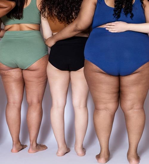 Gordofobia: por que corpos gordos são corpos políticos
