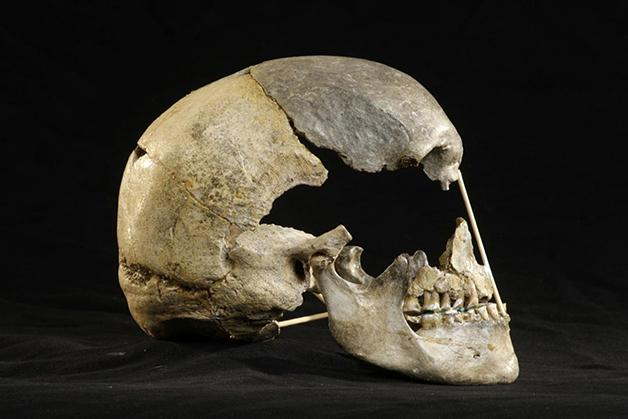 O crânio de Zlaty Kun
