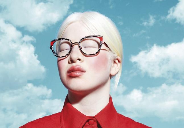 Vogue é estrelada por modelo abandonada na infância por albinismo