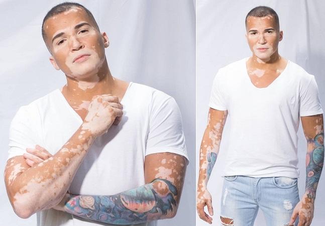 Modelo fala como relação com vitiligo abriu caminho para carreira