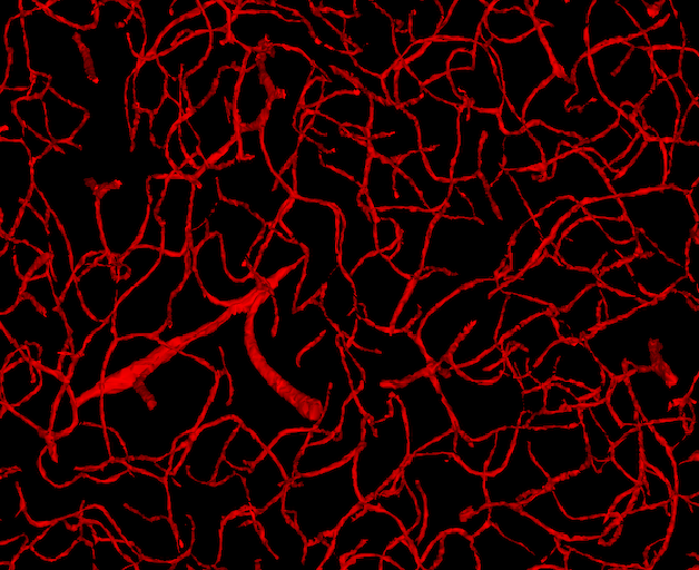 Parte dos vasos sanguíneos cerebrais registrados pelo mapa