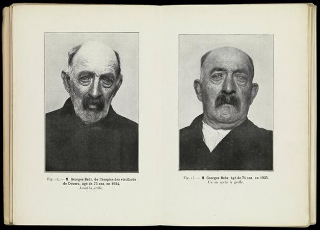 O tratamento do médico francês Serge Voronoff no século XX