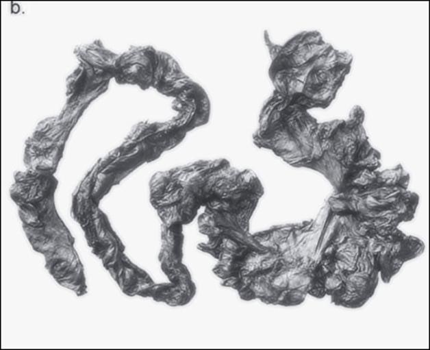 intestino do homem de tollund