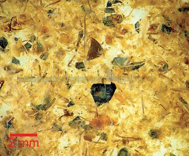 O material retirado do intestino visto em um microscópio