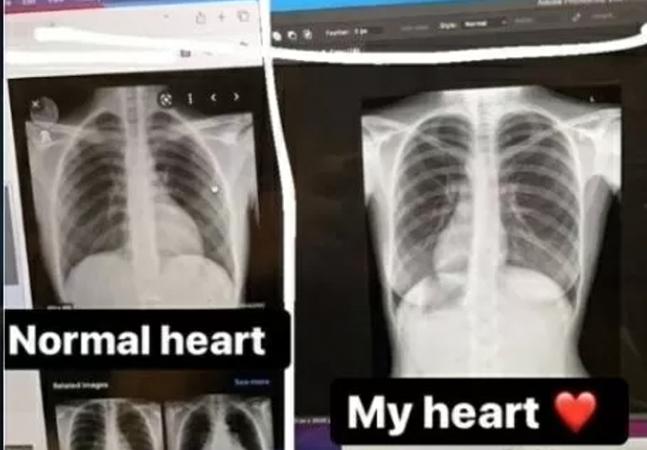 Jovem descobre coração do lado direito do peito: 'Comecei a rir'