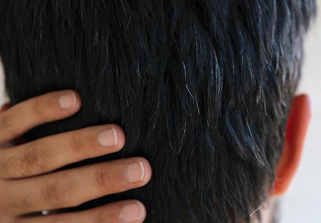 Cabelos brancos causados por stress podem ser revertidos, descobrem cientistas