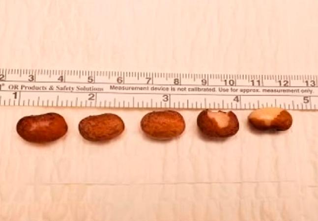 Homem que teve 6 grãos de feijão retirados de canal do pênis queria aumentar prazer